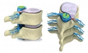 Pijn onderrug