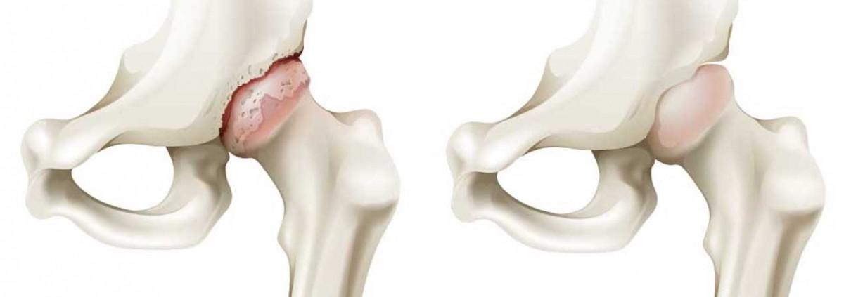 Wat is artrose